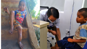 Chân của em Phước bị sưng mủ được bác sỹ thăm khám